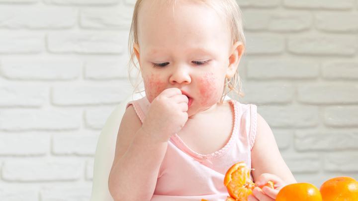 Alergia pokarmowa u dzieci - jedna z najczęściej nadrozpoznawalnych chorób dziecięcych