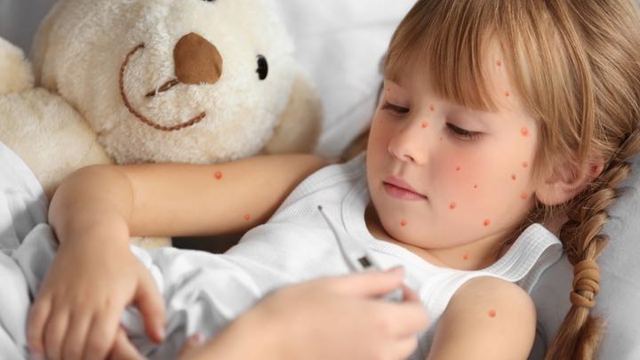 Ospa wietrzna u dziecka - o czym nie wolno zapominać, kiedy na skórze malucha pojawi się charakterystyczna, swędząca wysypka?