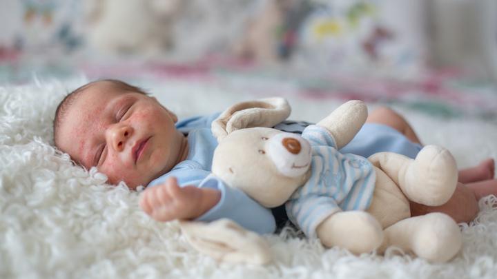 Trądzik niemowlęcy - jak leczyć?